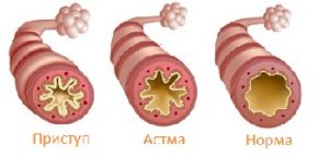 1419069512_bronhialnaya-astma-2