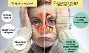 Гайморит-у-детей-симптомы-фото-0