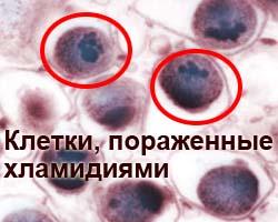 1441200464_chlamydia