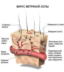 gerpes1