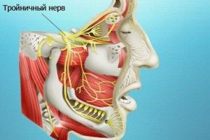 vospalenie-troin-nerva