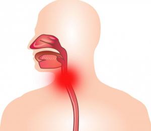 stenoziruyushij-laringit