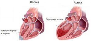 serdechnaya-astma